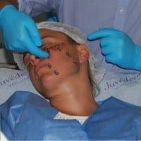 Taller Allergan Valencia en Clinica estetica Dr. Terrén