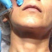 rellenos-faciales151114